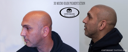 Scalp hair pigmentatio, by tattoo Bob.
