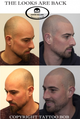 Scalp pigmentation tattoo Bob Rotterdam