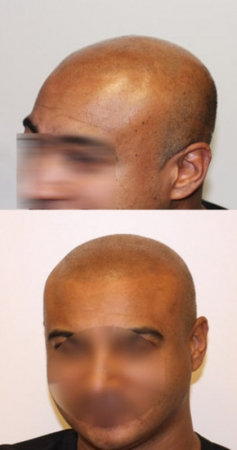 Scalp pigmentation tattoo bob